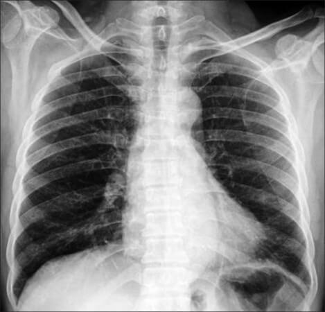 Αλλεργικό άσθμα