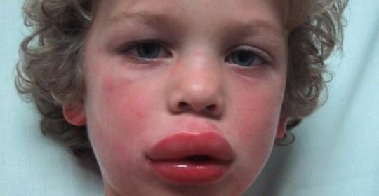 Allergic shock