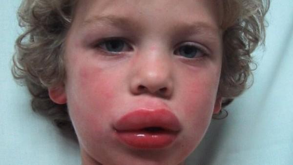 Αλλεργικό σοκ