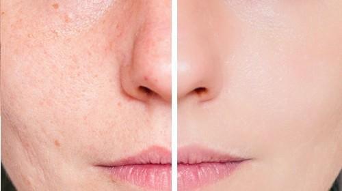 Αλλεργίες και καλλυντικά