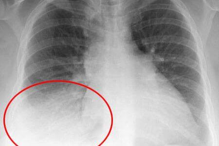 Η κορτιζόνη είναι αποτελεσματική και ασφαλής στην θεραπεία της πνευμονίας της κοινότητας