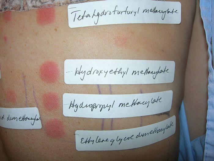 Τo ATOPY PATCH TEST (APT) στην διάγνωση της τροφικής αλλεργίας στο έκζεμα