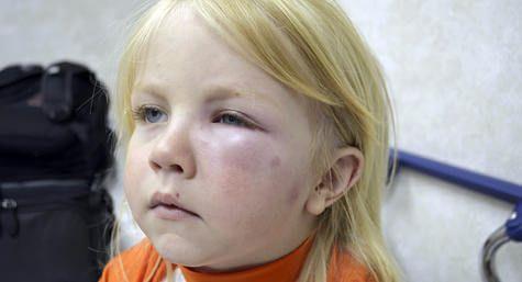 Οδηγίες για την ασφάλεια των μαθητών με τροφικές αλλεργίες